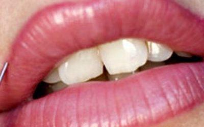 Micropigmentación color permanente en los labios